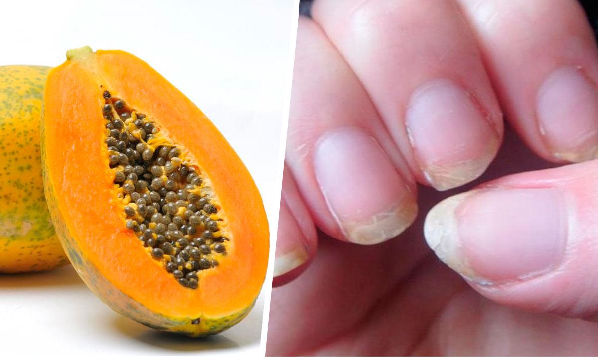 Como cura el hongo sobre las uñas