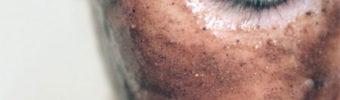 Mascarilla para Desaparecer Cicatrices, Machas y Puntos Negros